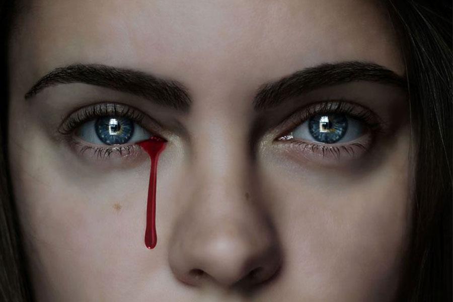 Se Pueden Llorar Lágrimas De Sangre Muy Interesante