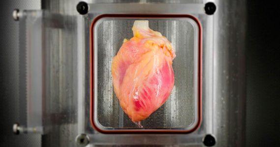corazones sintéticos