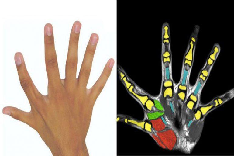 seis dedos