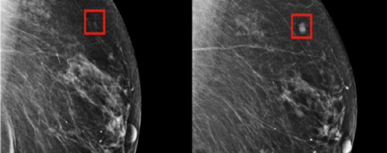 cáncer de mama inteligencia artificial