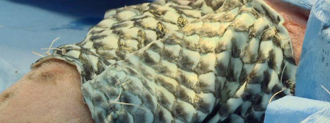 piel de pez