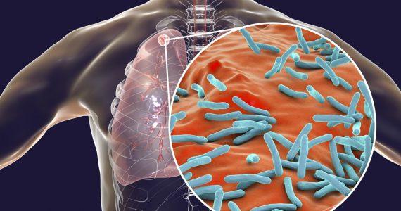 tuberculosis resistente