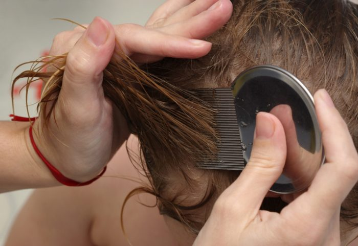 Cómo eliminar los piojos de la cabeza