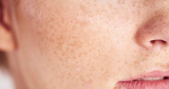 Microbios en la piel