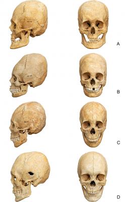 cráneos Imperio romano