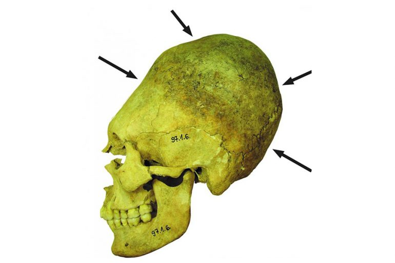 cráneos Imperio romanocráneos Imperio romano