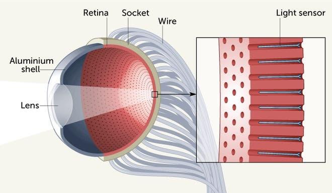 ojo artificial