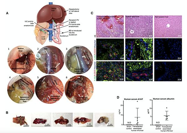 Hígados humanos miniatura