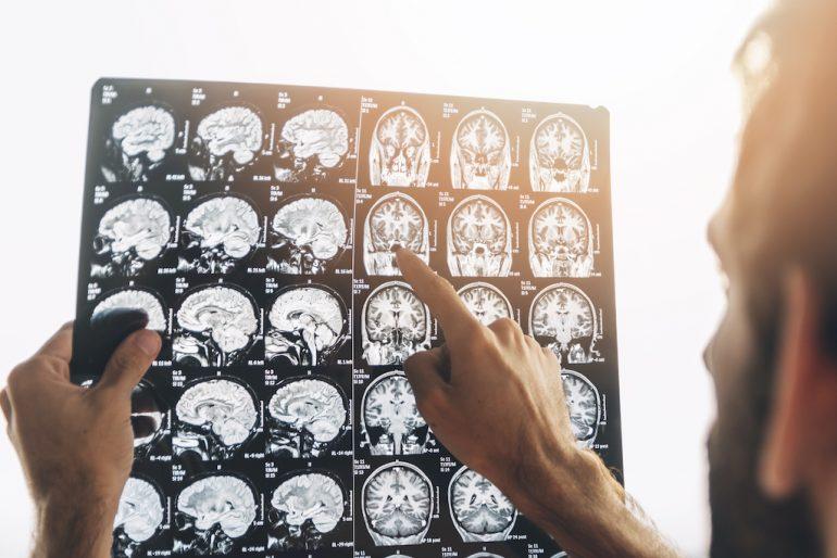 estrés en el cerebro