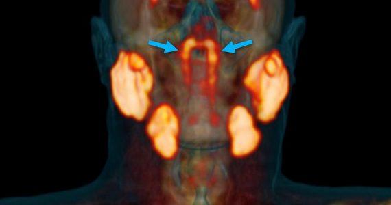 nuevo órgano glándulas
