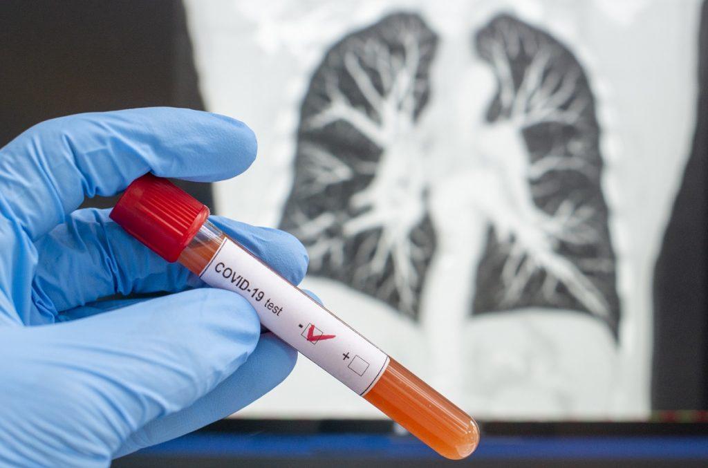 pulmones laboratorio pandemia