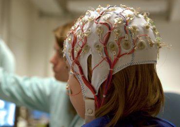 implante de cerebro