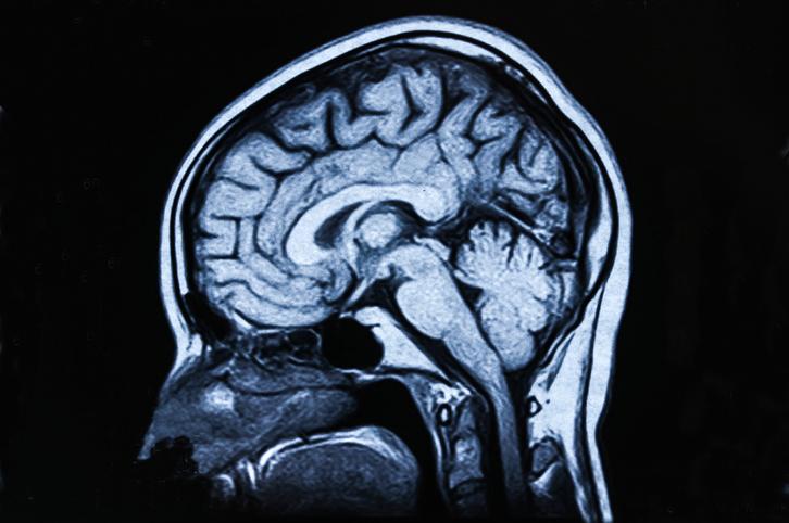 COVID-19 daño cerebral