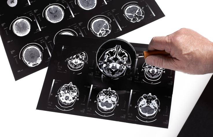 fármaco contra Alzheimer