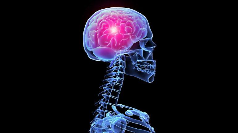 Señales de advertencia de un derrame cerebral