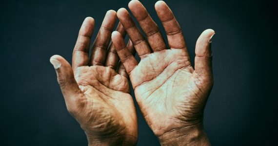 ¿Por qué tenemos líneas en la palma de la mano?