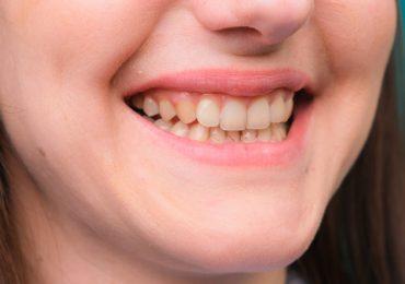 qué causa los dientes amarillos