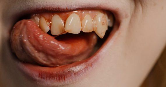 """Vampiros reales: las enfermedades que fortalecieron el mito de los """"chupasangre"""""""